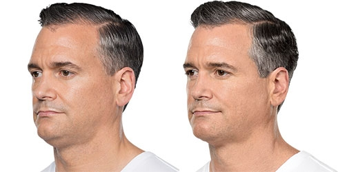 male patient before and after Kybella Treatment